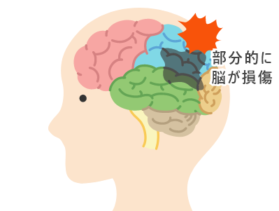 脳血管型認知症