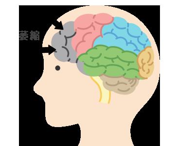 前頭側頭型認知症(ピック)